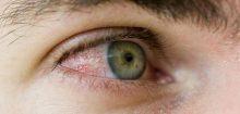 Yeux rouges, c'est peut-être le signe d'une allergie ou d'une conjonctivite